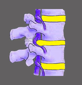 Central Spinal Stenosis