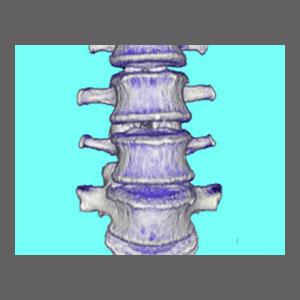 Congenitally Narrowed Spinal Canal