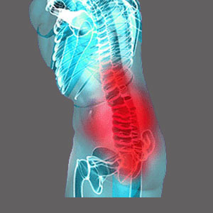 Symptoms of Spinal Stenosis