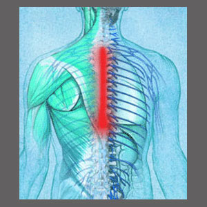 Thoracic Spinal Stenosis