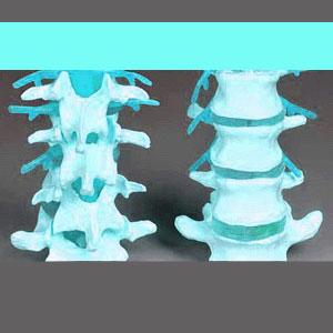 Arthritic Spinal Stenosis