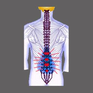 Cauda Equina Syndrome Spinal Stenosis