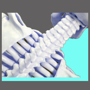 Causes of Cervical Spinal Stenosis