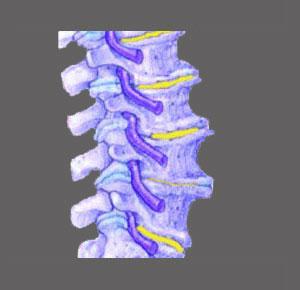 Causes of Foraminal Stenosis