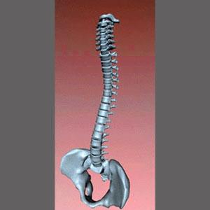 Congenital Spinal Stenosis