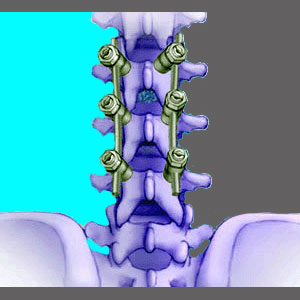 Surgical Fusion for Spinal Stenosis