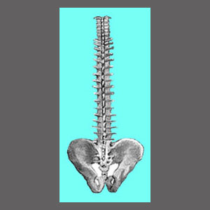 Misdiagnosed Spinal Stenosis