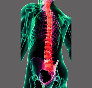 Spinal Stenosis Advice
