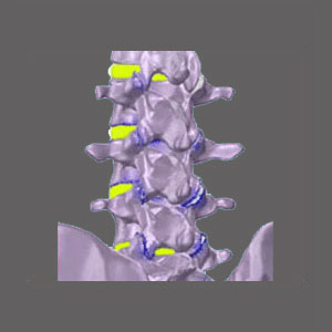 Spinal Stenosis and Osteoporosis