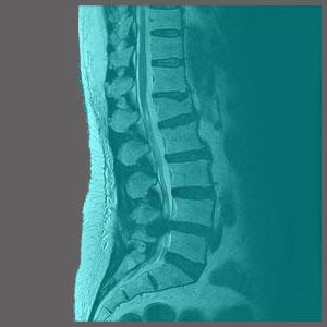 Spinal Stenosis in Children