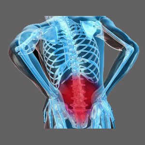 Spinal Stenosis in the Lower Back