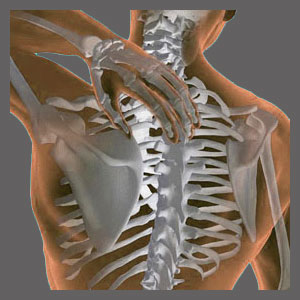 Spinal Stenosis in the Middle Back