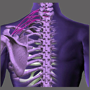 Spinal Stenosis in the Upper Back