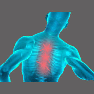 Spinal Stenosis Middle Back Pain