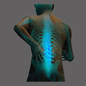 Spinal Stenosis Relief