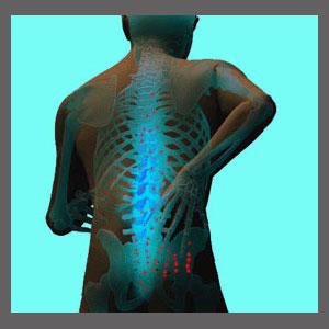 Spinal Stenosis Tingling
