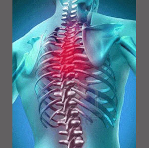 Spinal Stenosis Upper Back Pain