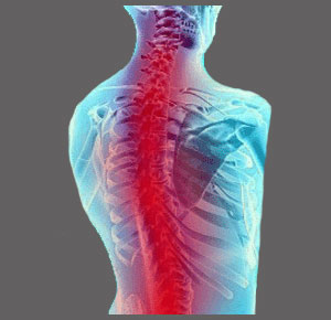 Developed Spinal Stenosis