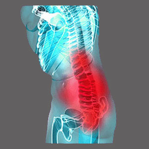Spinal cord impingement